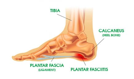 Plantar Fasciitis Orthotics Treatment