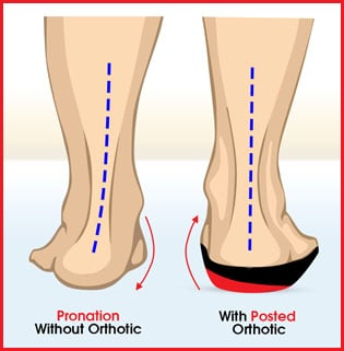 Pronation Foot Problem Orthotic Solution
